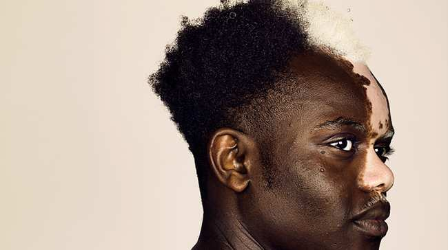 finding beauty in difference: model bashir aziz opens up about